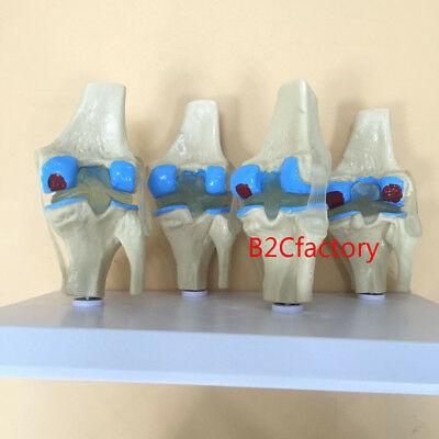 One Set of 4 Knee Joint 4-stage Osteoarthritis Anatomical Model Sale