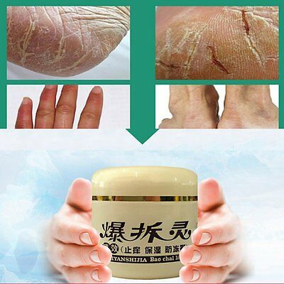 Anti-Crack Hand Foot Cream Moisturizing Heel Foot Massage Smooth Cream Skin Care