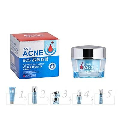 Strong-Acne Treatment Cream Acne Scar Removal Cream Blemish Spots Stretch Marks