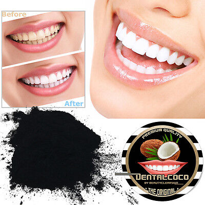 HOLLYWOOD WHITE TEETH | Activated Charcoal 2OZ SUPER WHITENER ,Tooth Bleaching