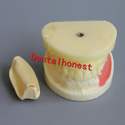 Great Dental Full Implant Drilling Practice Teeth Study Model Typodont Model