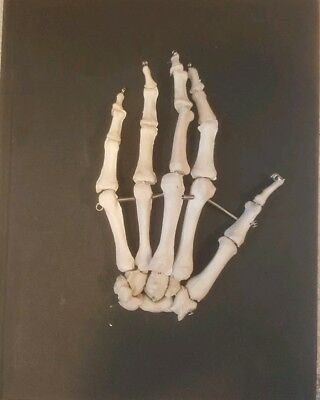 Human Left Hand Bone Anatomical Model