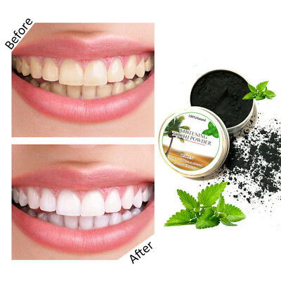 15g Activated Charcoal Teeth Whitening Organic Coconut Shell Powder Carbon Coco
