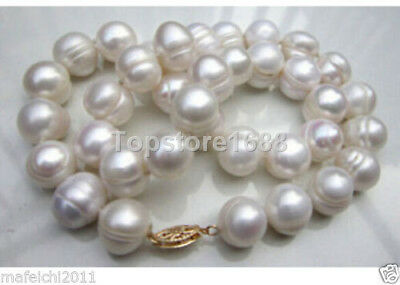 """HUGE AAA+ 10-11MM freshwater Cultured Baroque Pearl Necklace 18"""""""