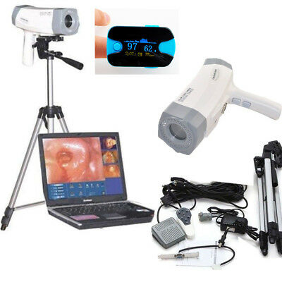 Hospital Clinic Video Sony Camera Electronic Colposcope 800,000 Pixels+ USA SPO2