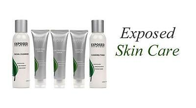 Exposed Skin Care ---- Kits ---- Acne Treatment