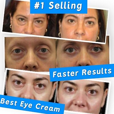Best 100%  Under Eye Cream - Remove Dark Circles Wrinkles Face Lines Puffy Eyes