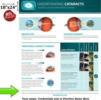 "Understanding Cataracts Poster for Patient Education ""Must See"" Wall Chart"