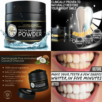 Teeth Whitening Activated Coconut Charcoal Powder – 2oz Kit Tooth Whitener White