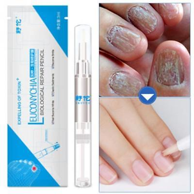 Fungal Nail Treatment Pen Onychomycosis Paronychia Anti Fungal Nail Infection HA