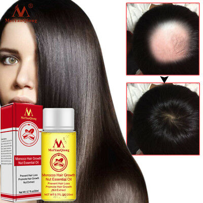 HOT Nut Hair Care Growth Liquid Hair Nourishing Care Hair Essential Oil 20ml