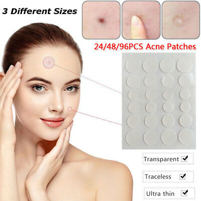 Skin Patch Remover Acne Conceal Pore Cleaning Sticker Clear Tag Facial Care Tool