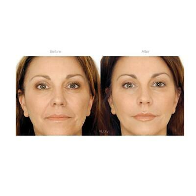 Face Lift Anti Wrinkle Line Cream, Instant. Serum. Works Instantly. Amazing!!