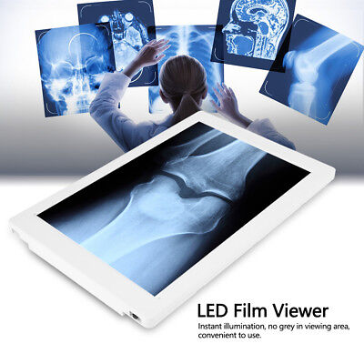 High Brightness LED Illumination X-Ray Film Viewer Illuminator A4 Panel White UK