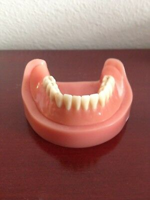 Dental Implant Precision Bar  Attachment  With Lower Overdenture Demo Model