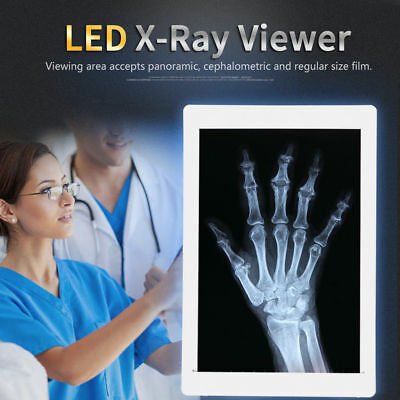 UK Dental X-Ray Film Viewer View Box LED Illuminator High Brightness AC 100-240V