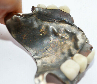 19th Century Teeth and Metal Plate