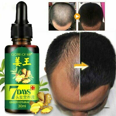 7 Day Ginger Germinal Hair Growth Serum Hair Loss Treatement Oil 30ml MT