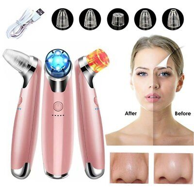 Blackhead Acne Remover Vacuum Microdermabrasion Facial Cleaner Derma Suction tL