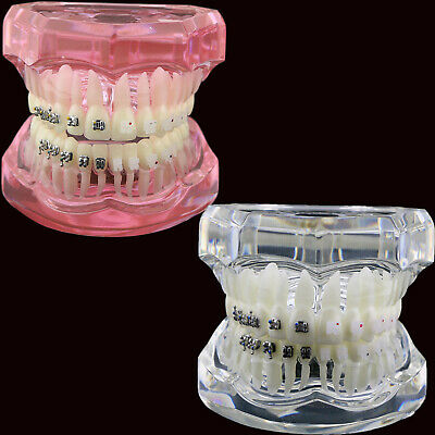 Dental Orthodontics Study Model with Ceramic and Metal Brackets #3003 Pink Clear
