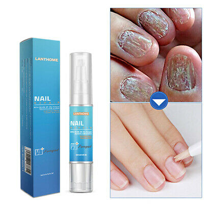 10ml Fungal Nail Treatment Essence Anti Fungus Infection Toe Nail Finger