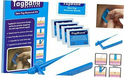Tagband Skin Tag Removal Device For Medium To Large Skin Tags