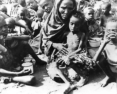 Sudan Famine-Helpless Starving Child-East Africa Famine-Pulitzer Prize Photo