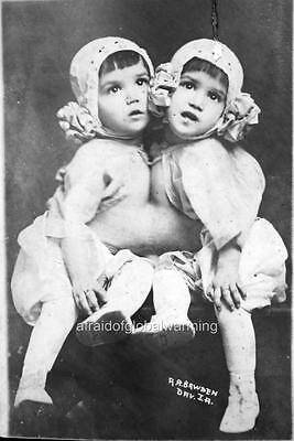 Old Photo Siamese Conjoined Twins Tocci Boys