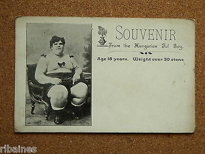 Vintage Postcard: Souvenir Hungarian 30 Stone Fat Boy Obese Child Early 1900s
