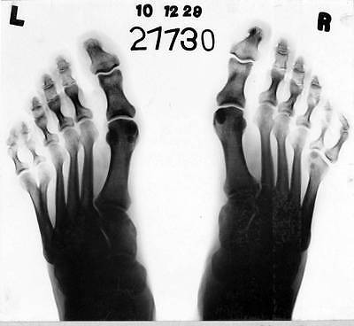 Old Photo. Xray Freak Feet With 6 Toes