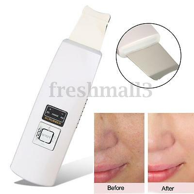 Ultrasound Ultrasonic Facial Cleaner Facial Skin Peeling USB Deep Scrubber NEW**