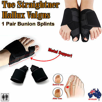 Toe Bunion Splint Corrector Foot Pain Relief Hallux Valgus Splint Brace 1 pair