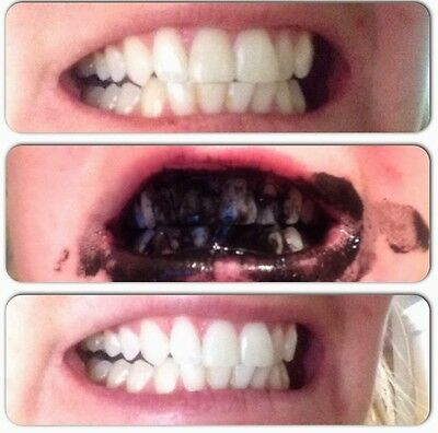 Activated Charcoal Toothpaste Healthy Do It Yourself Kit Packaging & Ingredients
