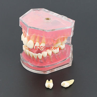 Dental Teeth Model Study Teach Standard Model with Removable Teeth #4004 01