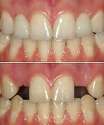 Replace a tooth Temp Tooth temporary tooth replacement cosmetic tooth DIY tooth