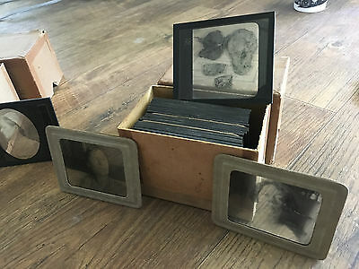 MAKE OFFER :) Antique 1920s Medical Oddities Glass Lantern Slides 42 total!