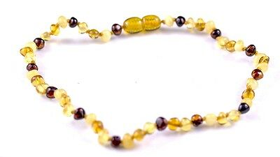 Multi Baltic Amber Bead Anklet