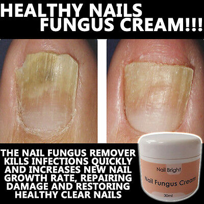 Nail Bright Nail Fungus Cream Lotion Stops Brittle Broken Nails Anti Fungal