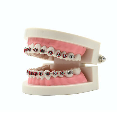Dental Teach Study Adult Typodont Tooth Teeth Model with Metal Brackets Braces