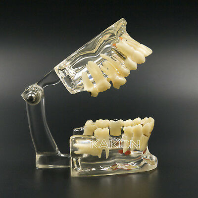 1 PC Dental Implant Disease Tooth Pathological Extrusion Missing Teeth Model
