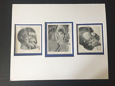 VINTAGE RARE MATTED READY TO FRAME: 3 Medical / Dental Plate Matted for Display