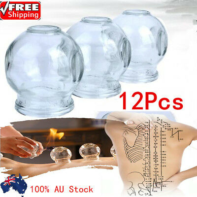 Acupuncture Massage Glass Cupping Set Dialproof Vacuum Glass Cupping Suction Cup