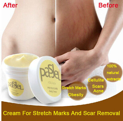US Seller Pasjel Cream For Stretch Marks And Scar Removal Powerful Repair