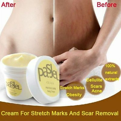 NEW Reduce Stretch Marks Scar Removal Repair Remove Body Wrinkles Cream Tool