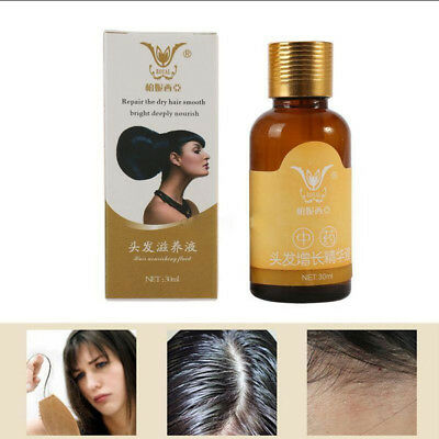 Natural Hair Loss Treatment For Men and Women Fast Growth Regrowth Dense 30ml