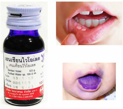30 ML OF Anti Infection Gentian Violet For Mouth Ulcer Tongue Canker Sores  1Pcs