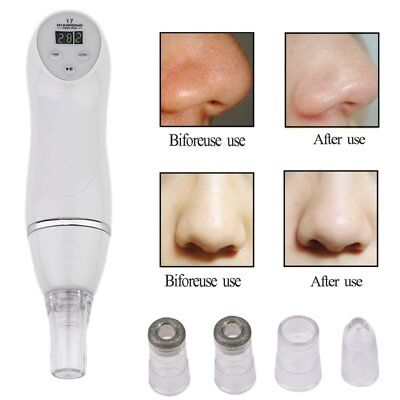 Comedo Microdermabrasion Vacuum Suction Pore Blackhead Remover Clean Machine GA