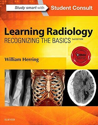 Learning Radiology: Recognizing the Basics, 3e by Herring MD  FACR, William
