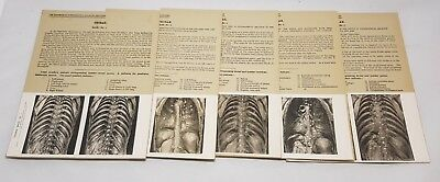 Vintage Antique Medical Stereoscopic Photos Anatomy Autopsy Dissection Cards