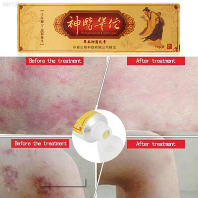 3885 Chinese Medicine Psoriasis Antibacterial Ointment Traditional Herbal